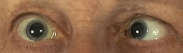 あらゆるスポーツに眼球運動はパフォーマンスに影響を与える